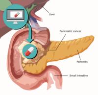 Target Pancreatic Cancer
